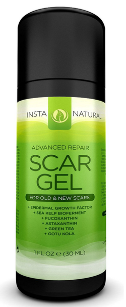 Blogging assignment: Advanced Scar Gel Review (UK bloggers)